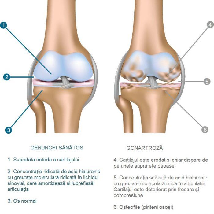 genunchi articulații mari