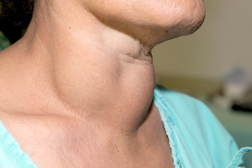hipertiroidismul durerii articulare