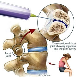 injecții pentru tratamentul piciorului durerii articulare