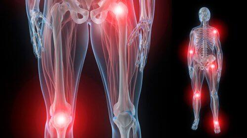 durere umar stang cauze bishungit cremă articulară
