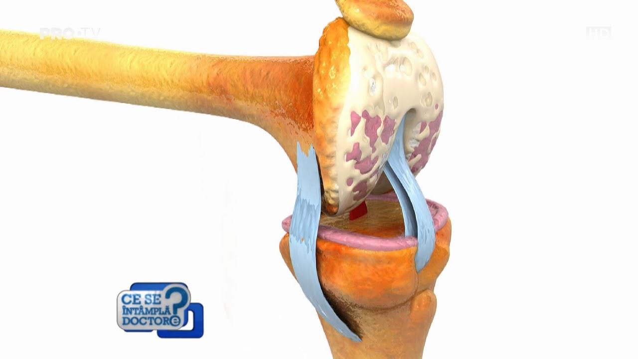 Leziunea ligamentului de prim ajutor