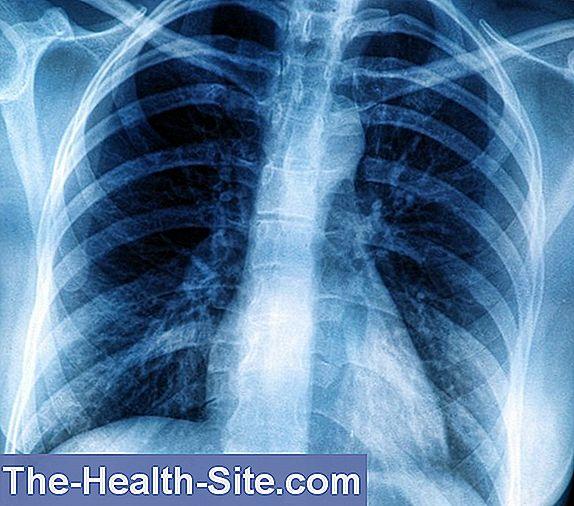 leziuni pulmonare în bolile difuze ale țesutului conjunctiv