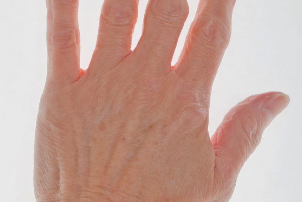 noduri pe degete artrita