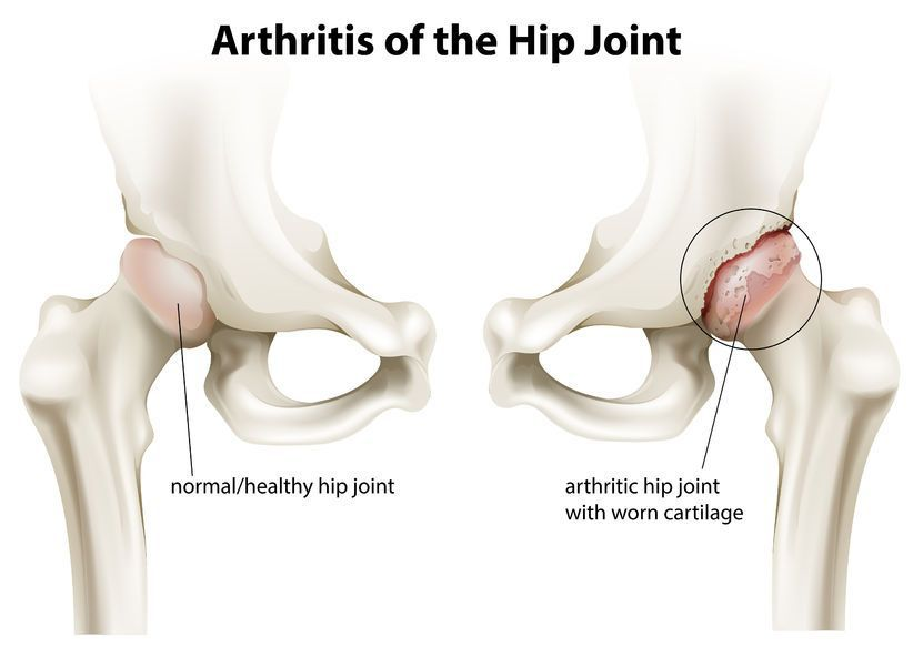 de ce rănesc articulațiile genunchiului și cotului
