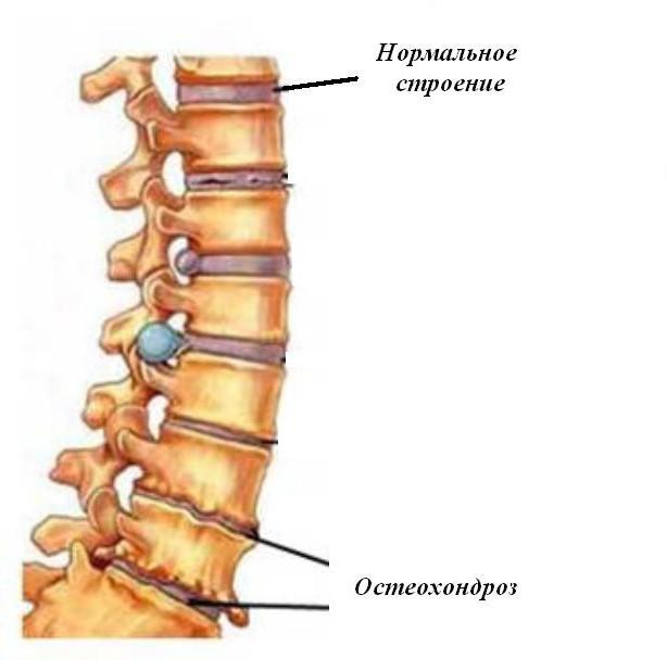 osteocondroza 4 perioade medicamente cauza durerii în articulațiile umerilor