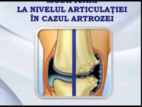 Ozokerit pentru dureri articulare. Tratament cu ozokerită cu artroză