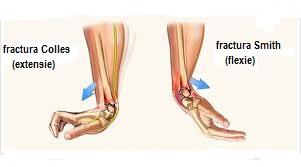 refacerea mișcărilor în articulația încheieturii mâinii după fractură