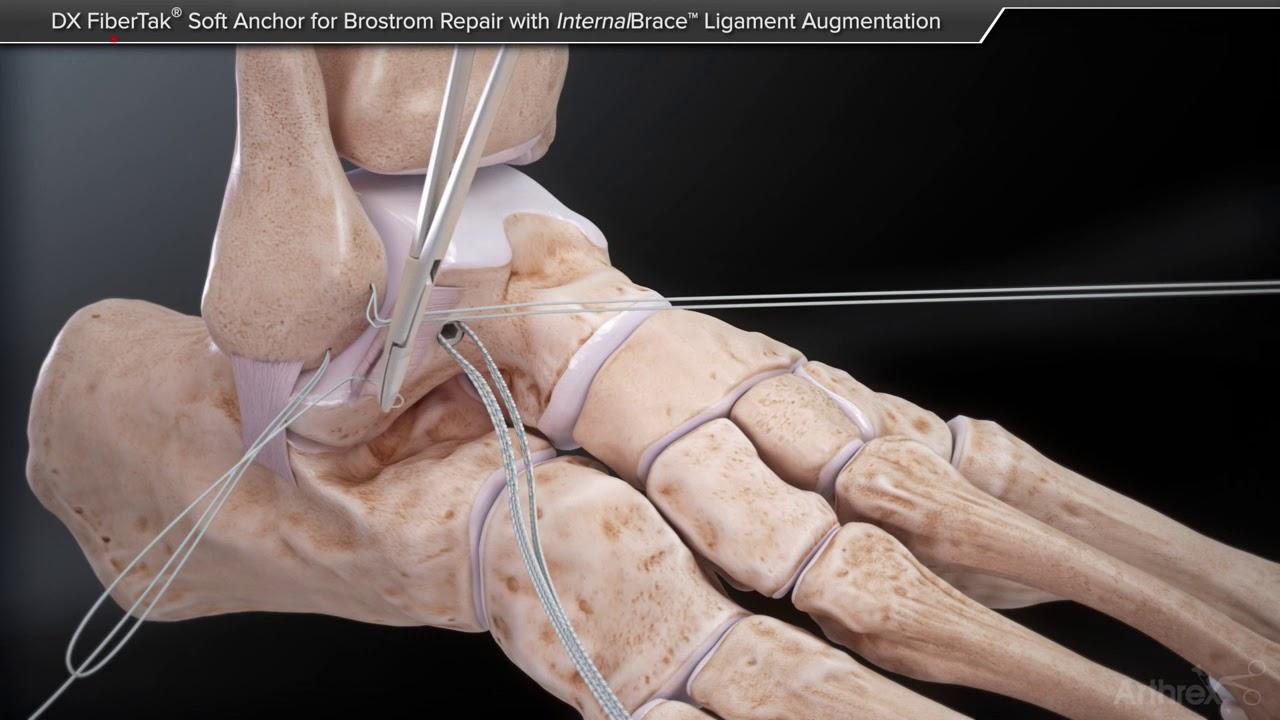 repararea fracturilor ligamentelor gleznei