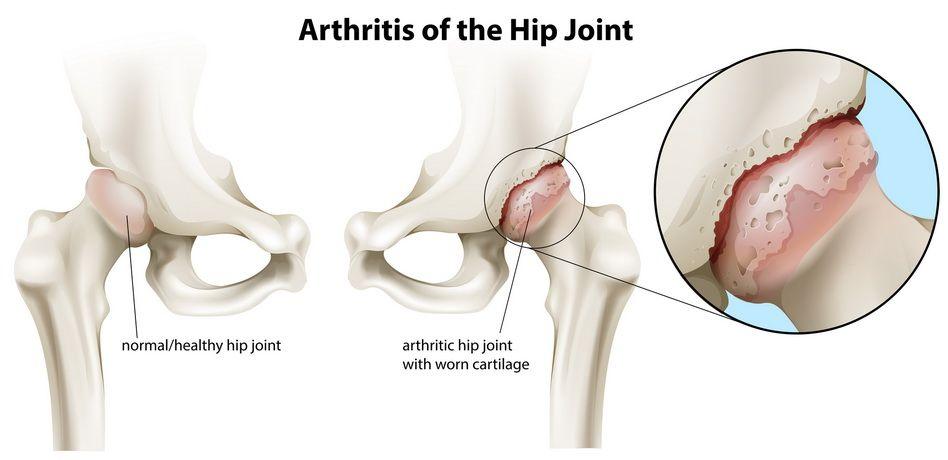 ce bandaj este aplicat pentru vătămarea gleznei dureri vasculare la genunchi