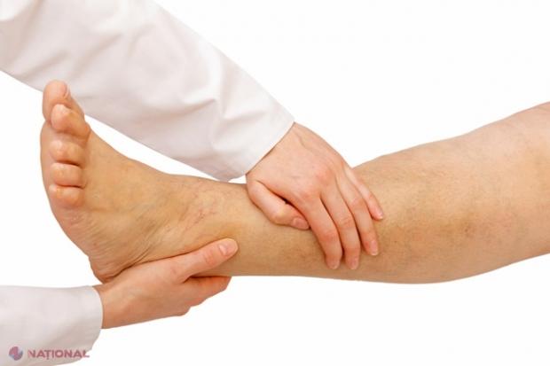 Care unguent este mai bun pentru osteochondroza lombară. Свежие комментарии
