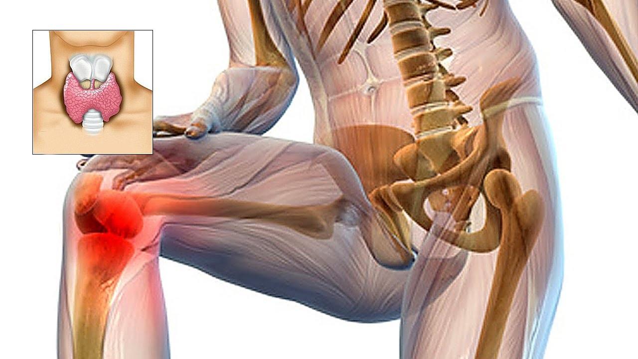 slabiciune generala dureri articulare