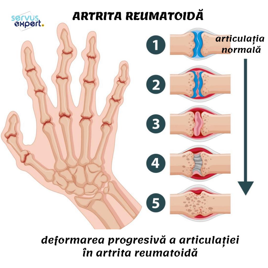 Cinci tipuri frecvente de artrita