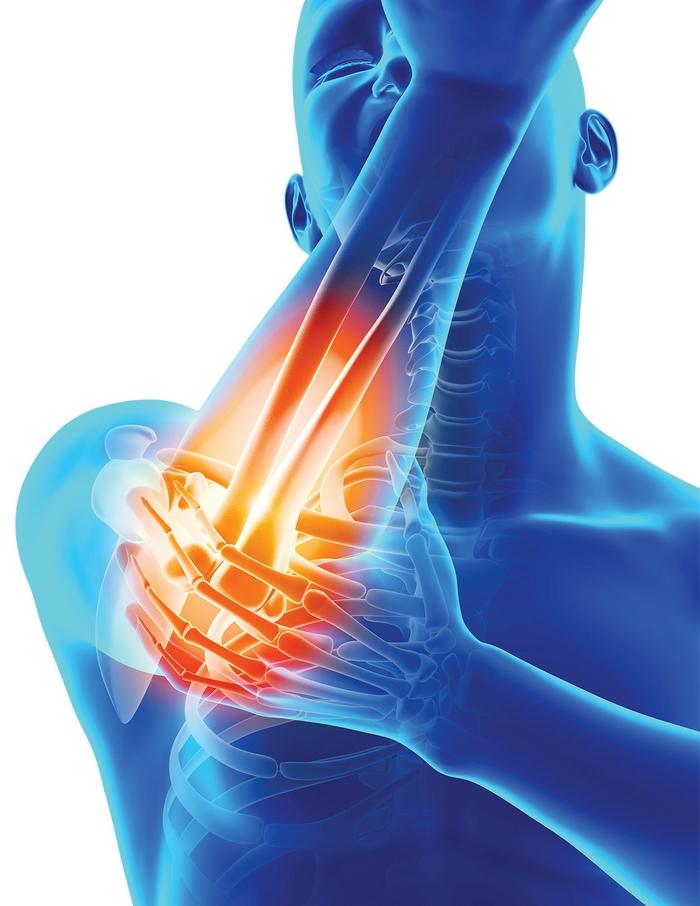 tipuri de inflamații articulare