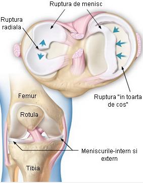 tipuri. leziuni la genunchi vătămarea cotului în toamnă