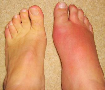 Cum să tratezi artrita piciorului guta - cazare-bucuresti-apartamente.ro