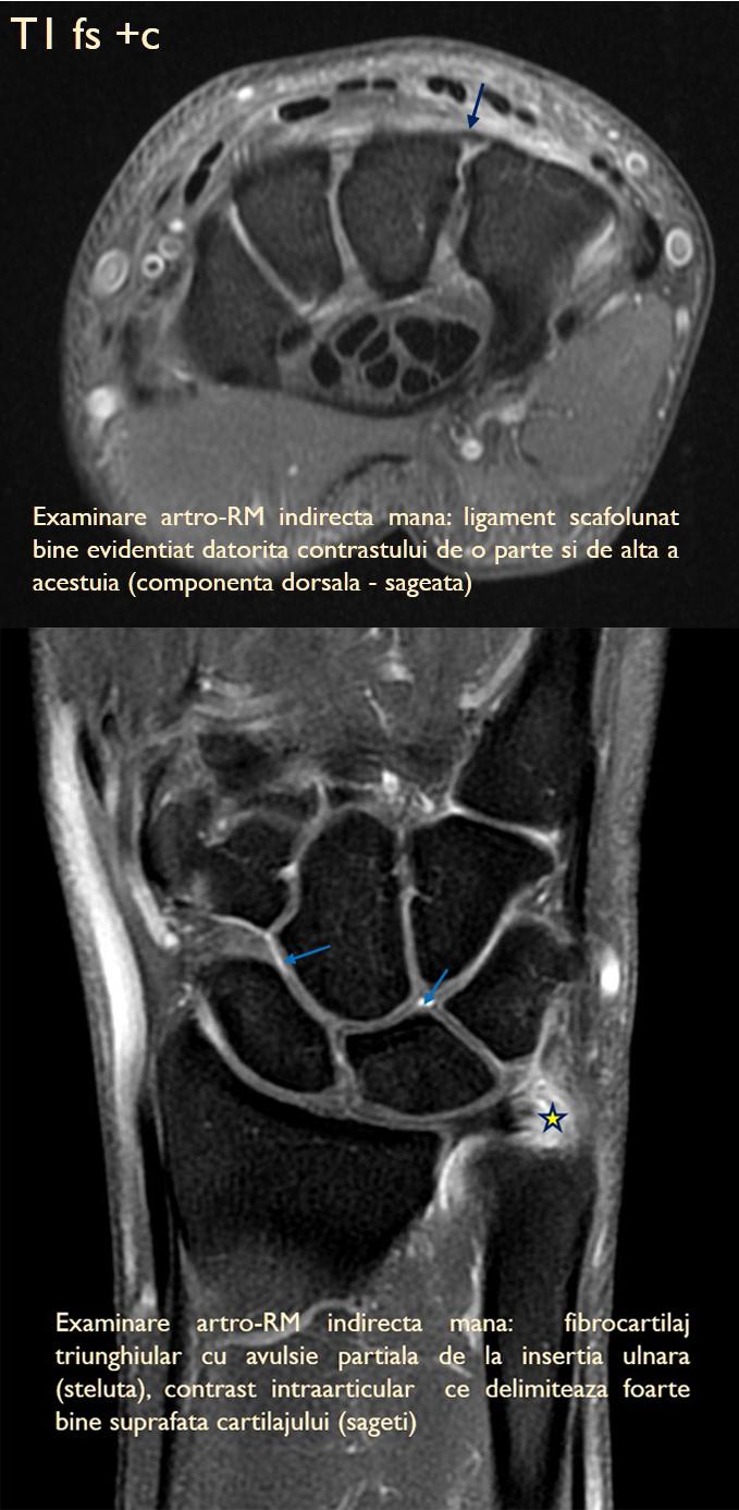 durere plictisitoare la nivelul articulației șoldului drept exerciții pentru durerea în articulațiile mâinilor și