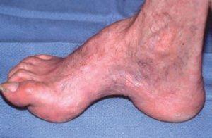 boli ale piciorului și articulațiilor