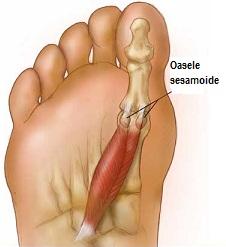 tratamentul inflamației articulației pe degetul de la picior