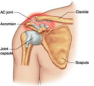tratamentul ligamentului umărului