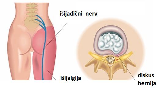 Tratament post-traumatic al articulațiilor umărului. Formular de căutare