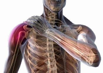 tratamentul simptomelor articulației umărului periartrita