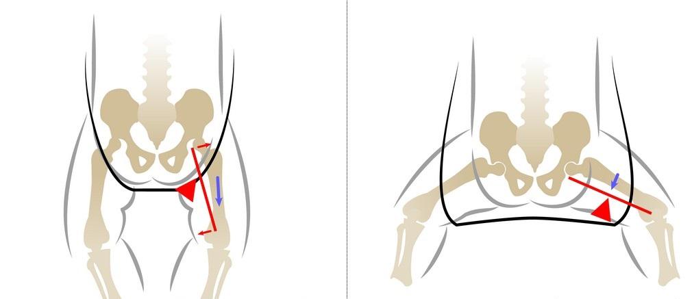 Hip dislocare și subluxație