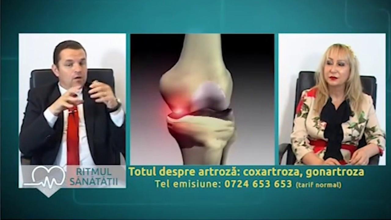 Artroza | Arcadia Spitale si Centre Medicale