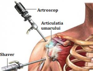 unguente după rănirea articulației umărului cum se tratează artroza umărului de gradul 3
