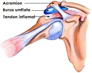 tratament cu bursita cronică a gleznei simptomele și tratamentul artrozei umărului