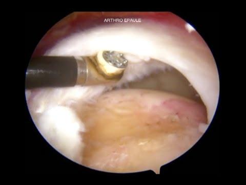 Tratament post-traumatic al articulațiilor umărului. Diagnostic