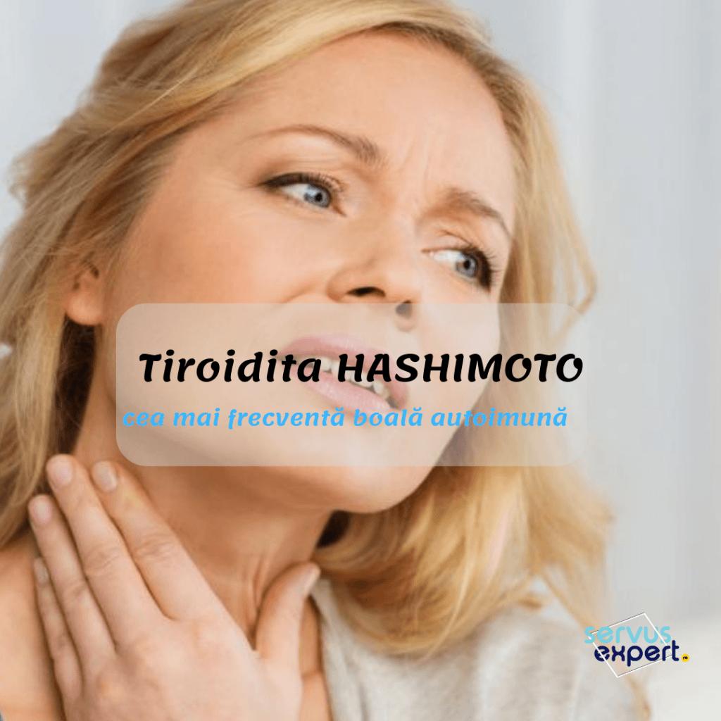 hipotiroidie dureri articulare