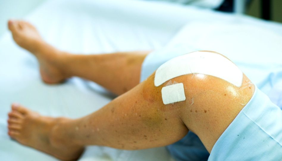 cum se tratează artrita sub formă acută