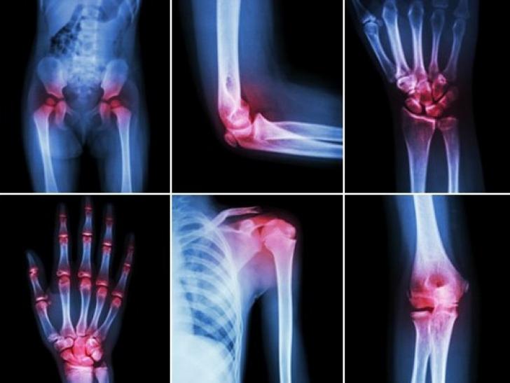 ce articulații sunt în genunchi