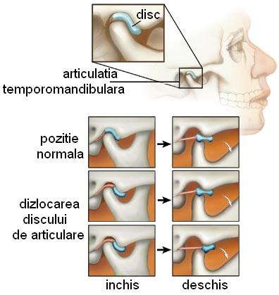 artroza durerii articulare temporale la ureche cum să tratezi când articulațiile sunt dureroase