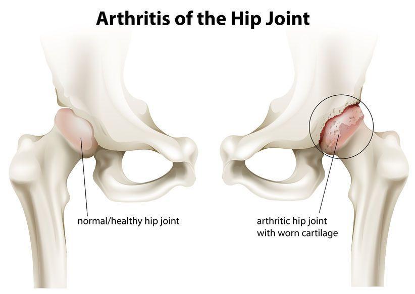 început artroza articulației șoldului
