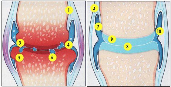 artroza deformantă posttraumatică a gleznei remediu eficient pentru durerea în articulațiile mâinilor