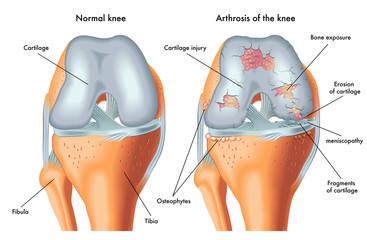durere în osteoartroza articulației șoldului ce este artroza articulației degetului