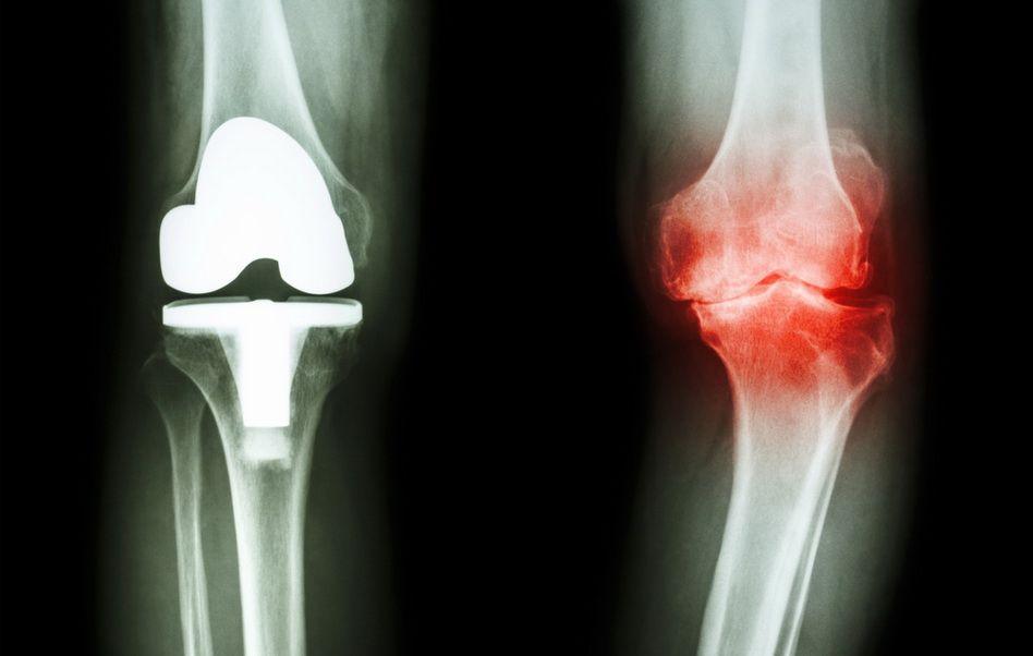 cum să tratezi artroza genunchiului cu medicamente