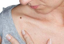 dureri articulare și erupții cutanate ce este