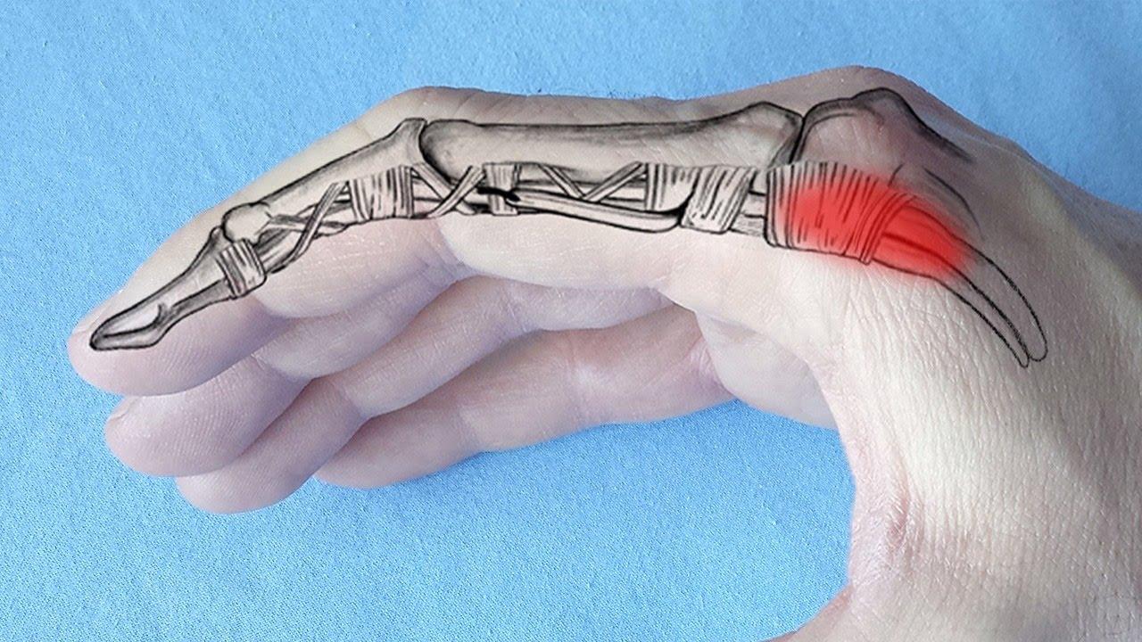 dureri articulare ale degetului mijlociu