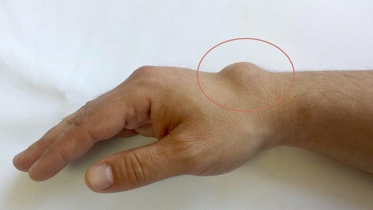 articulația încheietura mâinii doare ce să facă