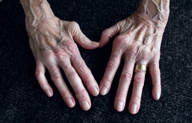 articulații la nivelul articulațiilor cu artrită reumatoidă toate oasele și articulațiile doare decât să trateze