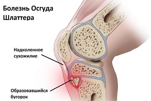 Condromalacia preparatelor genunchiului. Sindromul de plica mediala
