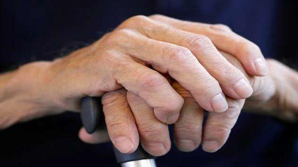 Cum să tratezi artrita după o luxație,