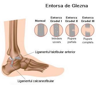 durata tratamentului pentru entorsa genunchiului