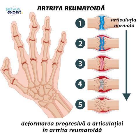 decoctul inflamației în articulații