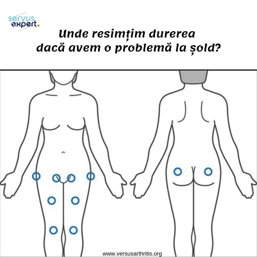 dureri în spate și dă articulației șoldului articulația doare unde umărul