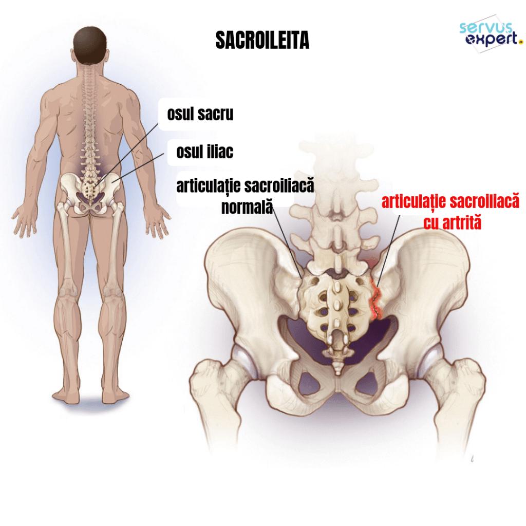 inflamația articulațiilor sacrului
