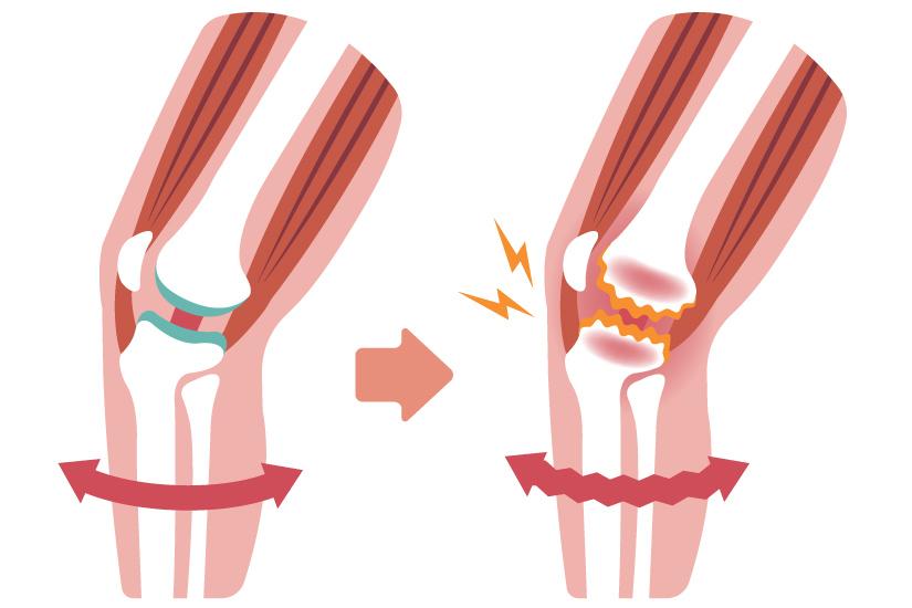 Picioarele cu aceste forme sînt predispuse la o boală dureroasă – Doctor Expres