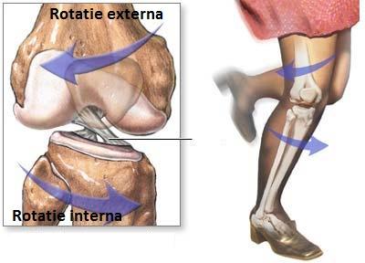 ruperea ligamentelor în tratamentul articulației genunchiului